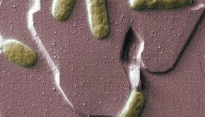 "Scientists at the University of East Anglia have made an important breakthrough in the quest to generate clean electricity from bacteria. New findings show that proteins on the surface of bacteria can produce an electric current by simply touching a mineral surface. The research shows that it is possible for bacteria to lie directly on the surface of a metal or mineral and transfer electrical charge through their cell membranes. This means that it is possible to ""tether"" bacteria directly to electrodes -- bringing scientists a step closer to creating efficient microbial fuel cells or ""bio-batteries.""  Credit: Alice Dohnalkova"